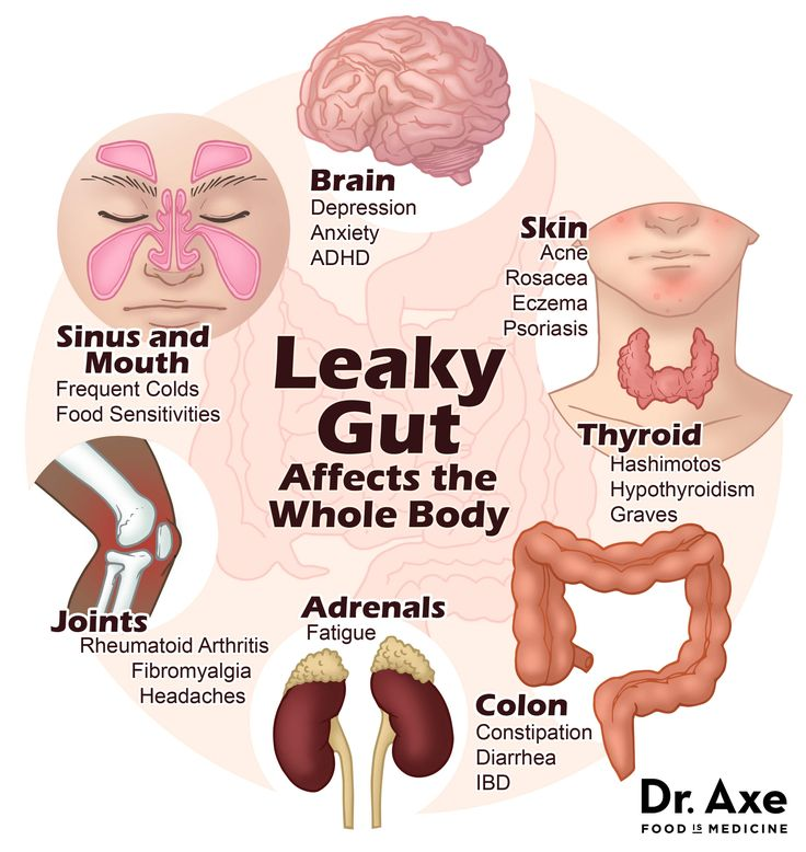 One of the biggest warning signs that you may have leaky gut  can be that you're experiencing multiple food sensitivities. Partially digested protein and fat can seep through your intestinal lining, making their way into your bloodstream and causing an allergic response.