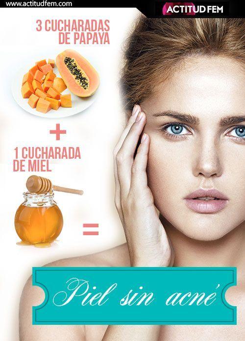 creatividad...: piel sin acne