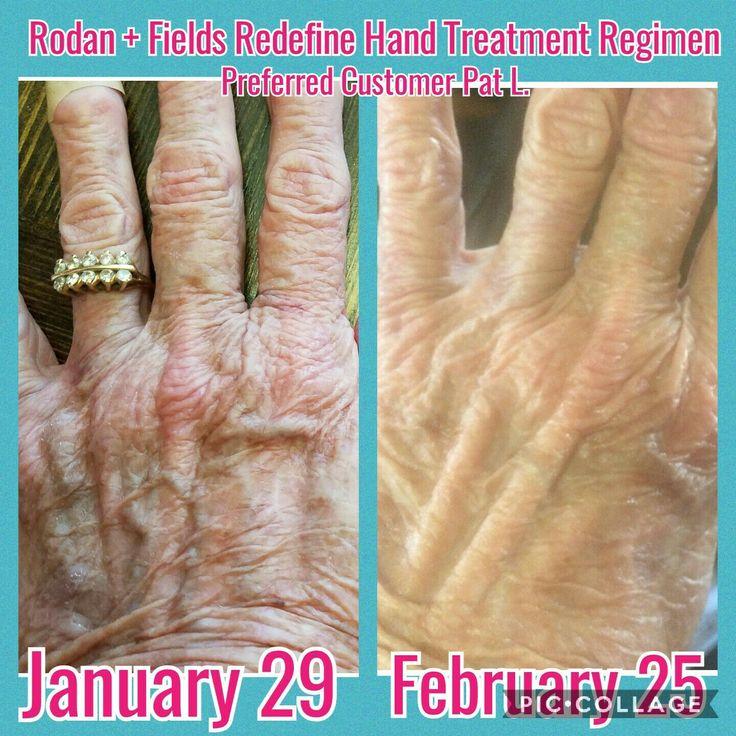 18 best Rodan + Fields Hand Regimen: Age Spots, Wrinkles & Crepey ...