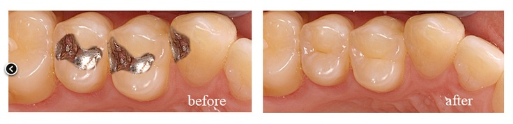 You can readily see why this patient wanted their dark silver fillings replaced with tooth colored fillings under sedation dentistry.