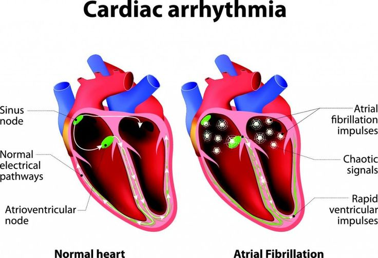 Heart arrhythmias are treated with medications, electrophysiologic ablations, and surgically placed pacemakers or implantable cardioverter-defibrillators.