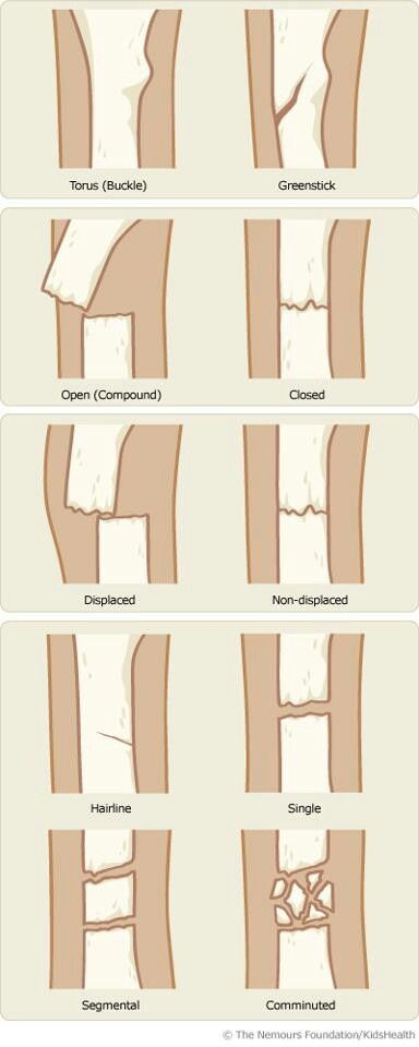 Types of fractures