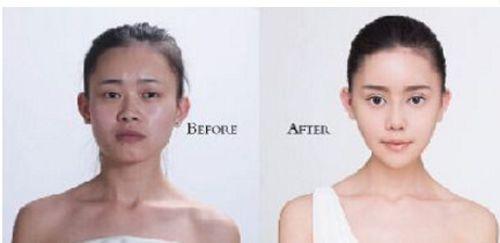 Cô gái Trung Quốc chi 100 triệu Nhân dân tệ để phẫu thuật giống Angelababy