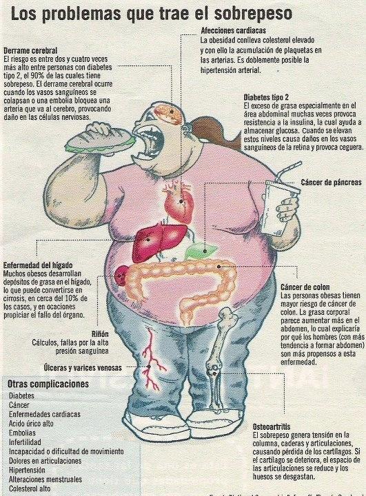 Obesidad, sus complicaciones.