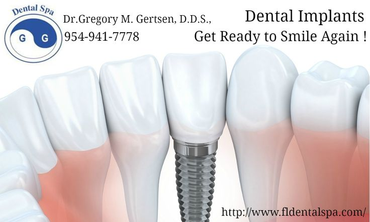 Dental implants are replacement tooth roots and dental crown to improve your smile and over oral heath.Contact Dr. Gregory M. Gertsen, D.D.S., at dental Spa Center for Oral Facial Surgery today!