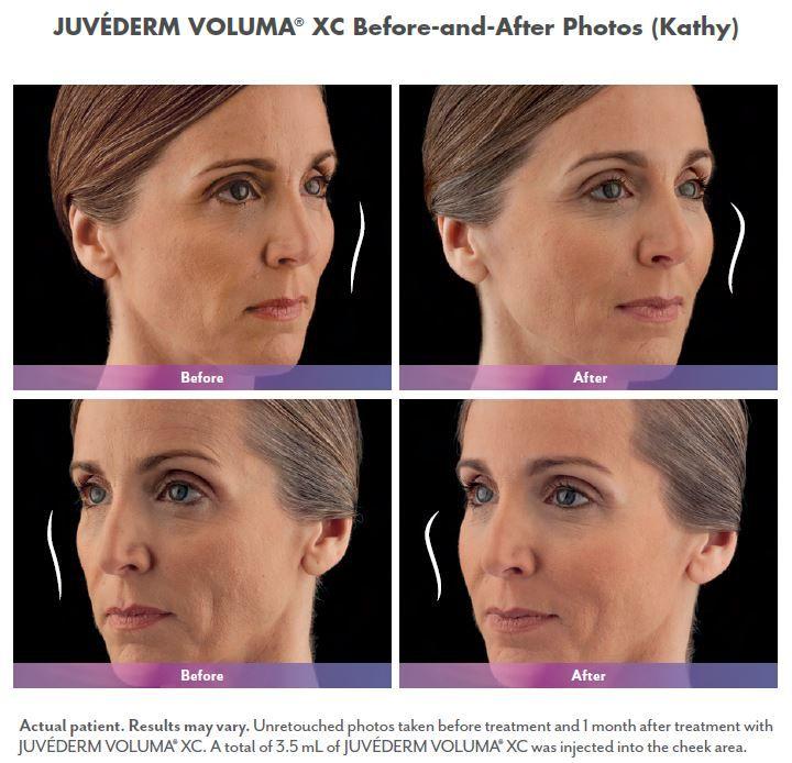 Kathy Before And After Voluma Voluma Dermatology Dermatology Skin Care