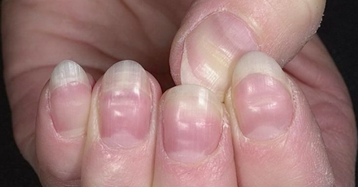 10 Health Warnings Your Nails May Be Sending You via LittleThings.com