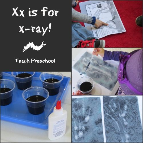 """KID-MADE X-RAYS This is a really creative and fun craft centered around the mysteries of X-Rays and the magical letter """"X""""."""
