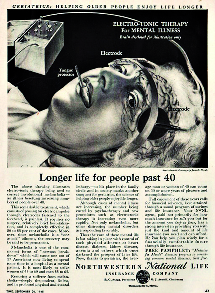 Over 40 is considered to be geriatric in this 1940's ad for electric shock therapy.
