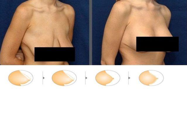 Masque contre l'affaissement des seins