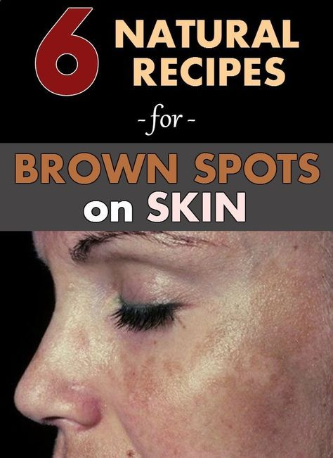 6 natural recipes for brown spots on skin