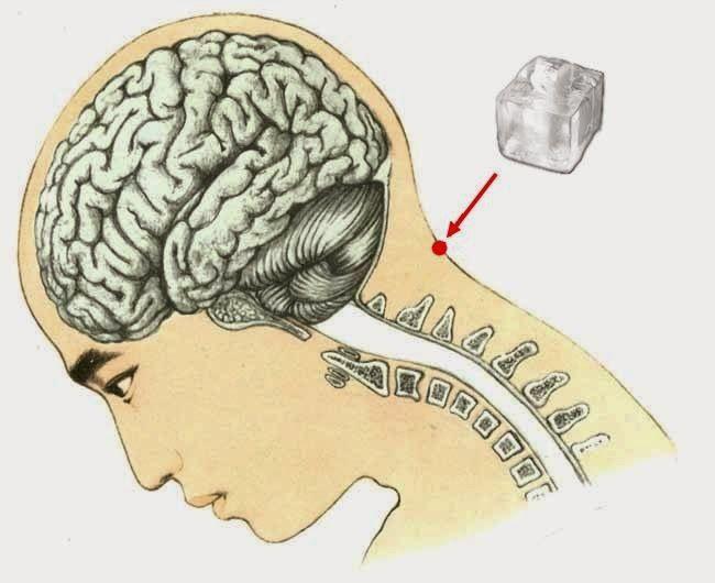 Stop migraine, stop insomniesDécouvrez les effets d'un glaçon sur ce point de votre cou !