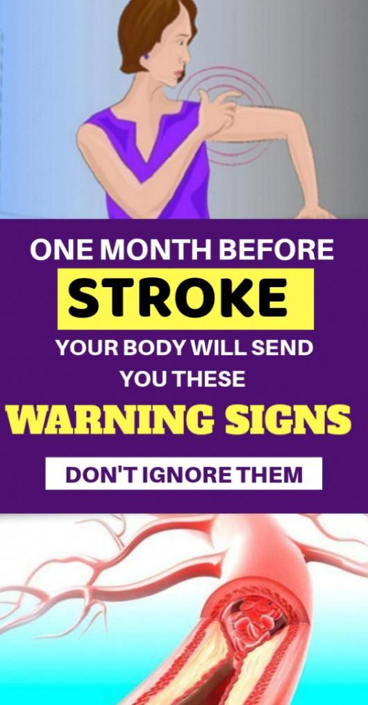 One Month Before Stroke, Your Body Will Send You These