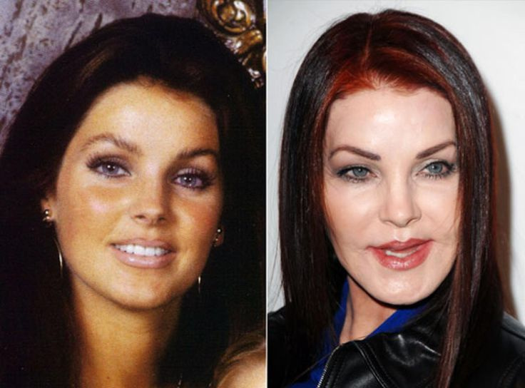 Priscilla Presley looking fresh-faced.//Presley after getting botched plastic surgery.
