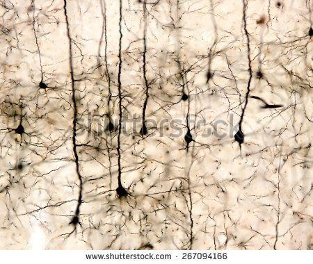 Pyramidal neurons of the cerebral cortex impregnated with the Golgi method.