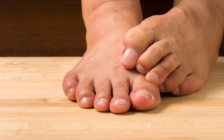 Wie Sie Fußnagelpilz behandeln sollten, so ein Fußarzt, #behandeln #nagelpilz …