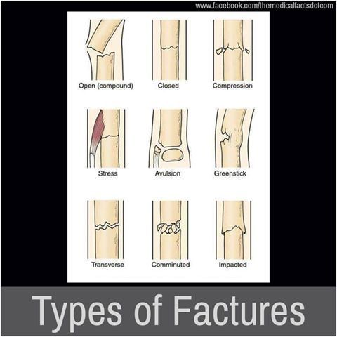 types of fractures                                                                                                                                                                                 More