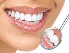Como branquear os dentes com bicarbonato. O bicarbonato de sódio é um produto natural que, além de ter inúmeros benefícios para o organismo, passou a ser o melhor remédio natural para conseguir dentes mais brancos e brilhantes. De fato, muita...