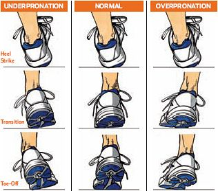 Pronation and supination: What it is, how to tell and what you can do (videos) - Baltimore Running | Examiner.com