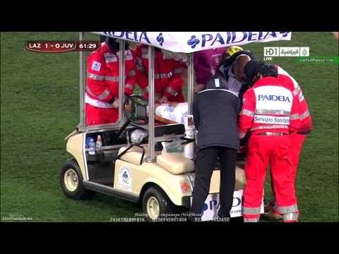 FOOTBALL -  Big HEAD injuries Lazio Hernanes - Juventus Coppa Italia 29.01.2013 Coppa Italia - http://lefootball.fr/big-head-injuries-lazio-hernanes-juventus-coppa-italia-29-01-2013-coppa-italia/