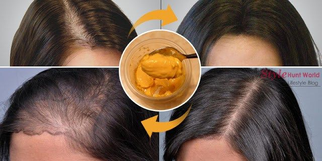 Now Grow Your Hair At Home And Leave All Doctors With Open Mouth