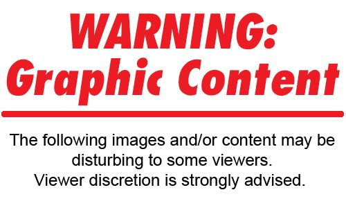 WARNING GRAPHIC, RAW PHOTOS YOU WILL NOT SEE IN MAINSTREAM MEDIA -- Radical Islam --This is evil in its purest, crystalline form... | RedFlagNews.com