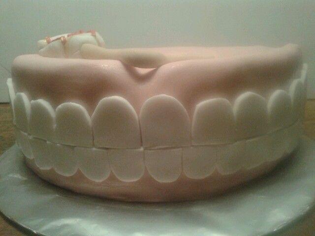 Even op de tanden bijten voor een mooi gebit