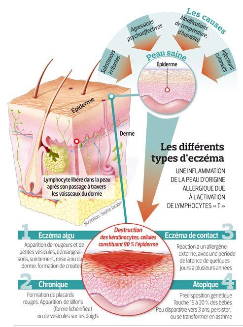 Eczema, les cas augmentent dans les pays industrialisés