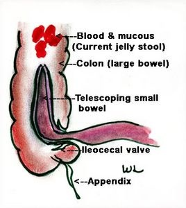 diagram of anatomy of lungs diagram of intussusception #11