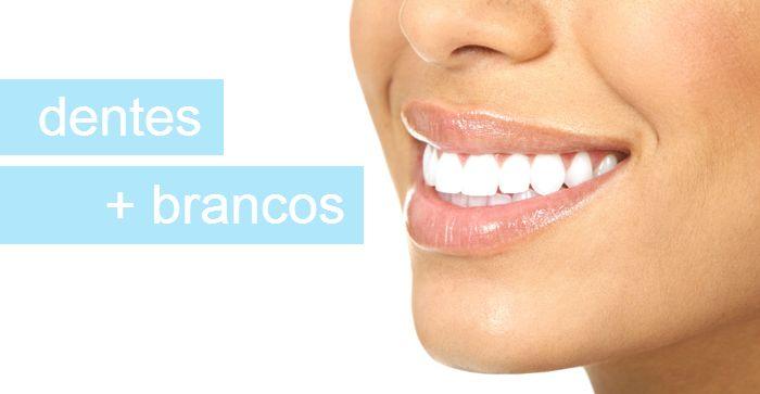 Como clarear os dentes – clareamento dental