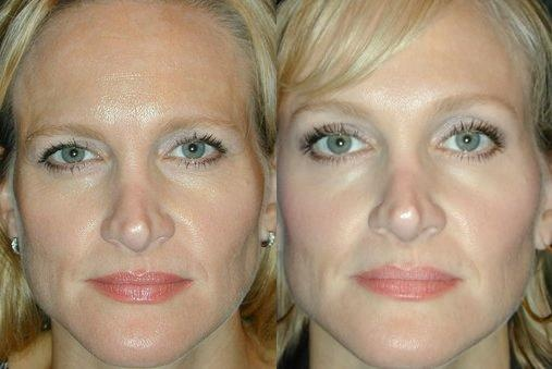 Before & After: This 45-year old woman came in for Botox ...