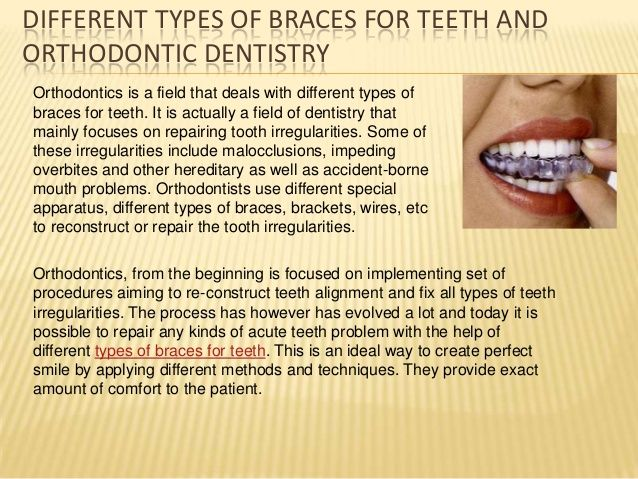DIFFERENT TYPES OF BRACES FOR TEETH ANDORTHODONTIC DENTISTRYOrthodontics is a field that deals with different types ofbraces for teeth.