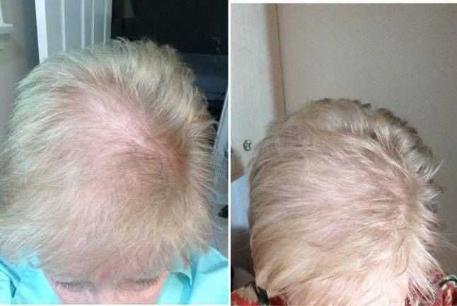 Monat 6 week results with Revive Shampoo, Rejuveniqe Oil. #hairgrowth #monat #sahm #hair #hairloss