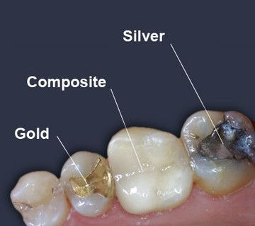 Dental Filling Options