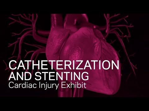 Cardiac Catheterization and Stenting - YouTube