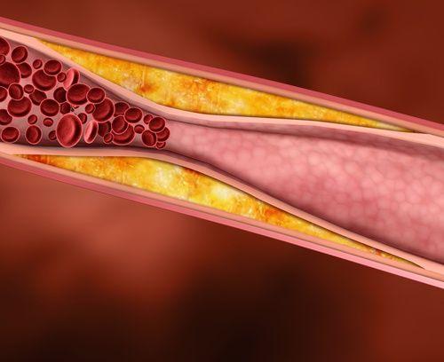 Heilpflanzen gegen einen erhöhten Cholesterinspiegel