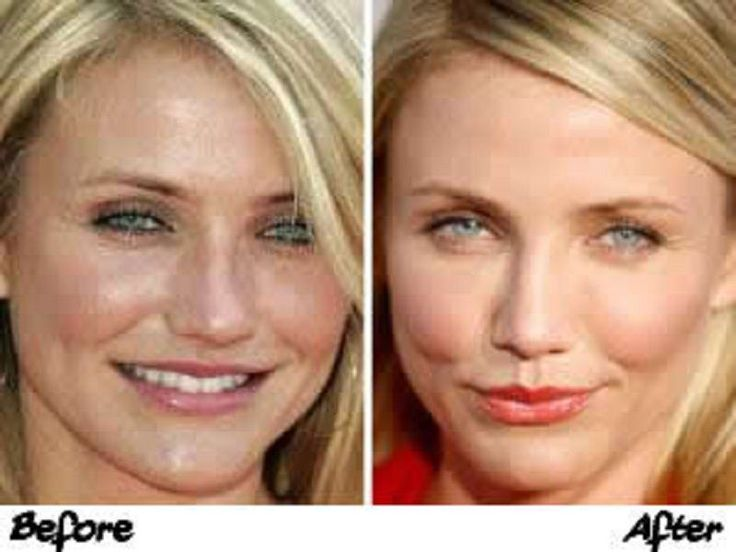 Want To Have The Plastic Surgery? See The Cameron Diaz Plastic Surgery