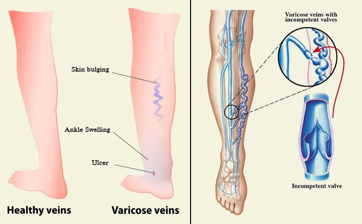 how to get veins to pop out of your legs