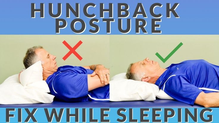 Simple Way To Improve Hunch Back Posture While You Sleep Giveaway Youtube In 2021 Postures Simple Way Good Posture