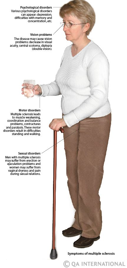 multiple+sclerosis+pictures | Multiple sclerosis: a disease whose causes are unknown | Visual ...
