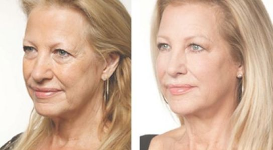 Tips To Greatly Enhance Your Appearance With Face Toning: Look Youthful Within Days Using These Therapy Routines
