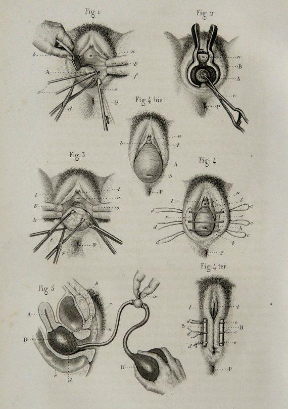1857 antique impression bizarre de gynécologie. OBSTÉTRIQUE. Partus. Parturition. Surgery.Childbirth. enceintes. Lithographie de 158 ans.