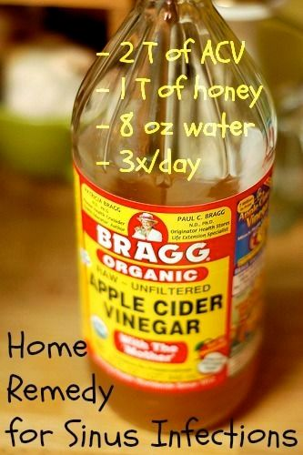 sinus infection home remedy | ... to their sinus infections this acv steam home remedy really seemed to by AislingH