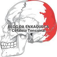 Blog Da Enxaqueca - Local da Cefaleia Tensional