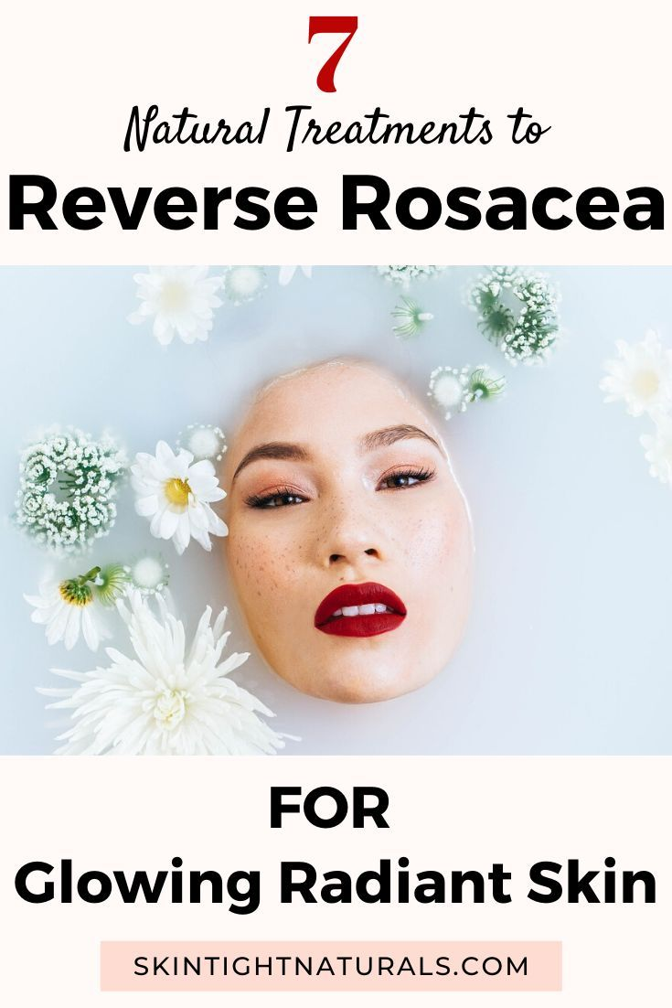 How To Get Rid Of Rosacea In 2020 With Images Rosacea Skin