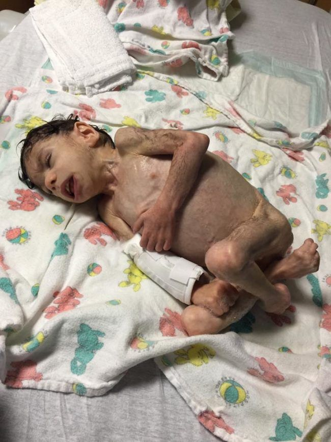 In addition to being severely malnourished, Ryan was diagnosed dwarfism, scoliosis, cerebral palsy, and clubfoot. His body had also grown dark hair in an effort to keep him warm. Everyone told Priscilla to prepare herself for his early death.