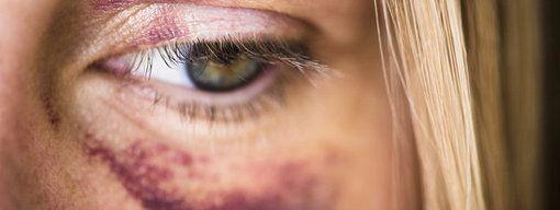 """La violencia contra la mujer, un """"escandaloso drama"""" de nuestro tiempo. http://www.farmaciafrancesa.com/"""