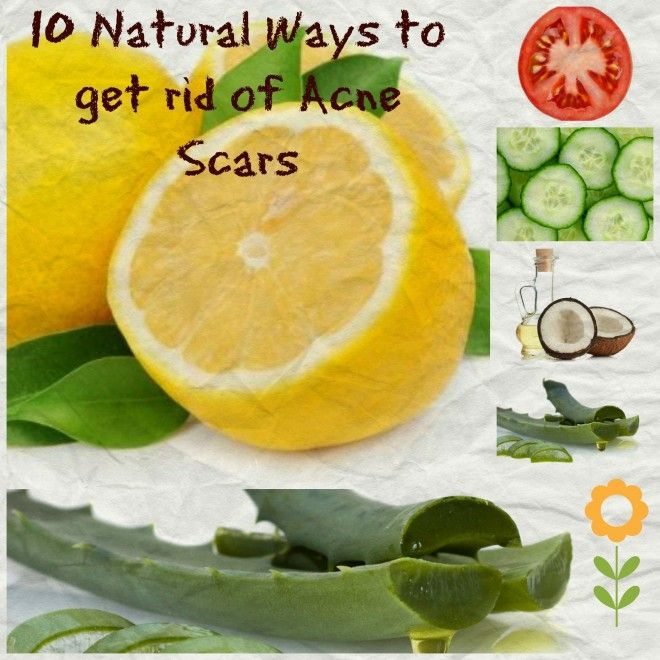10 natural ways to get rid of acne scars