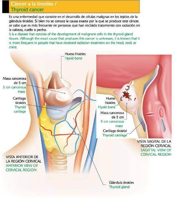 Cáncer a la tiroides Icarito