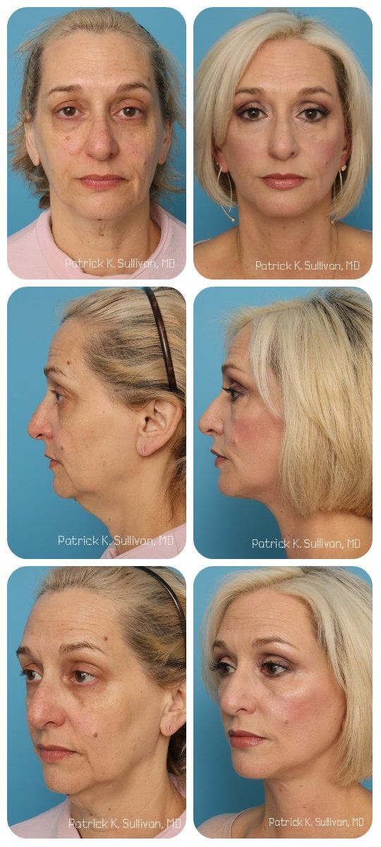 7 best facial rejuvenation female images on pinterest facial this is a 54 year old woman who came to see dr sullivan due to her concerns over her jowls loss of contour in her neck area the downturn in the ccuart Image collections